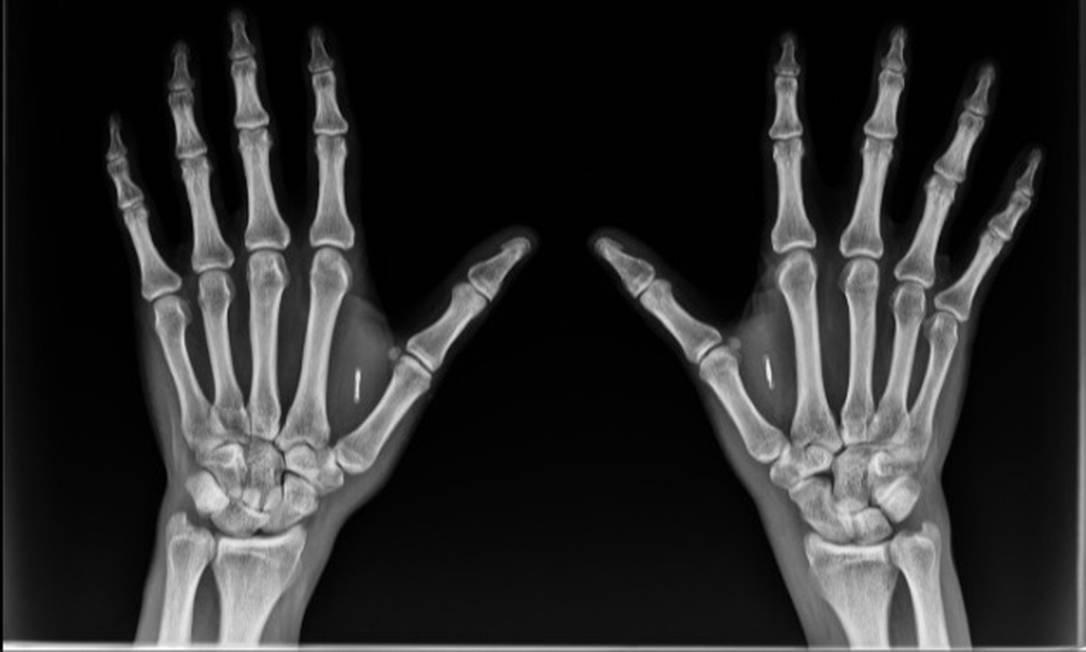 Thiago Bordini tem dois biochips implantados, um em cada mão Foto: Divulgação