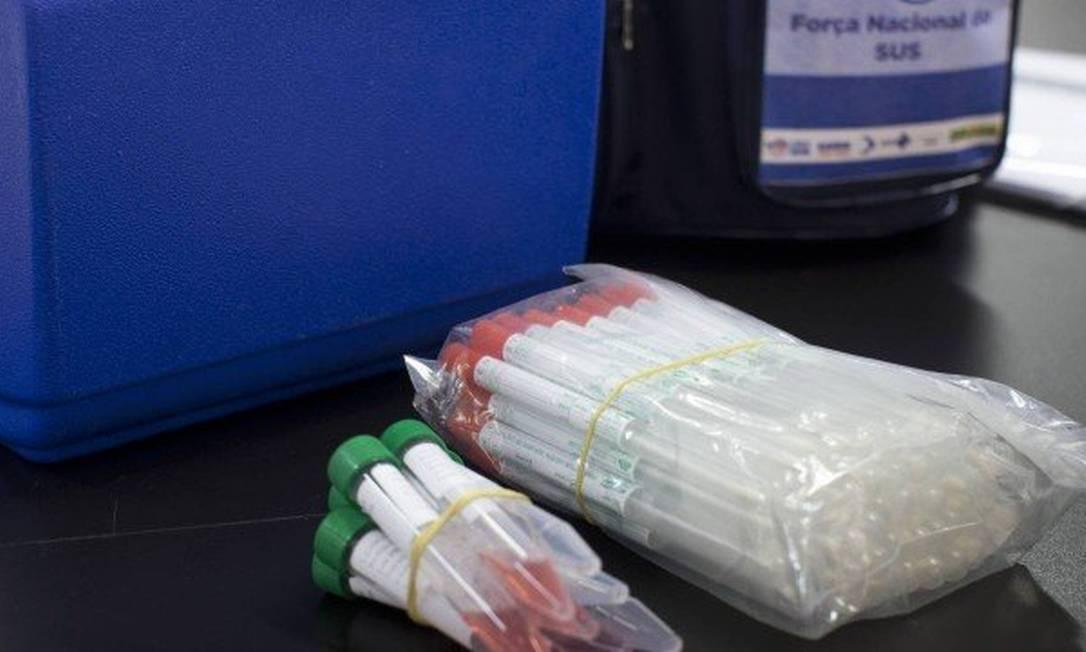 bancos vão importar 5 milhões de testes para detectar o covid-19 Foto: Reprodução