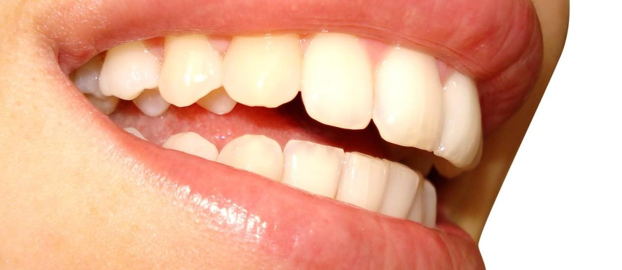 Anvisa Vai Regulamentar Venda De Clareadores Dentais Jornal O Globo