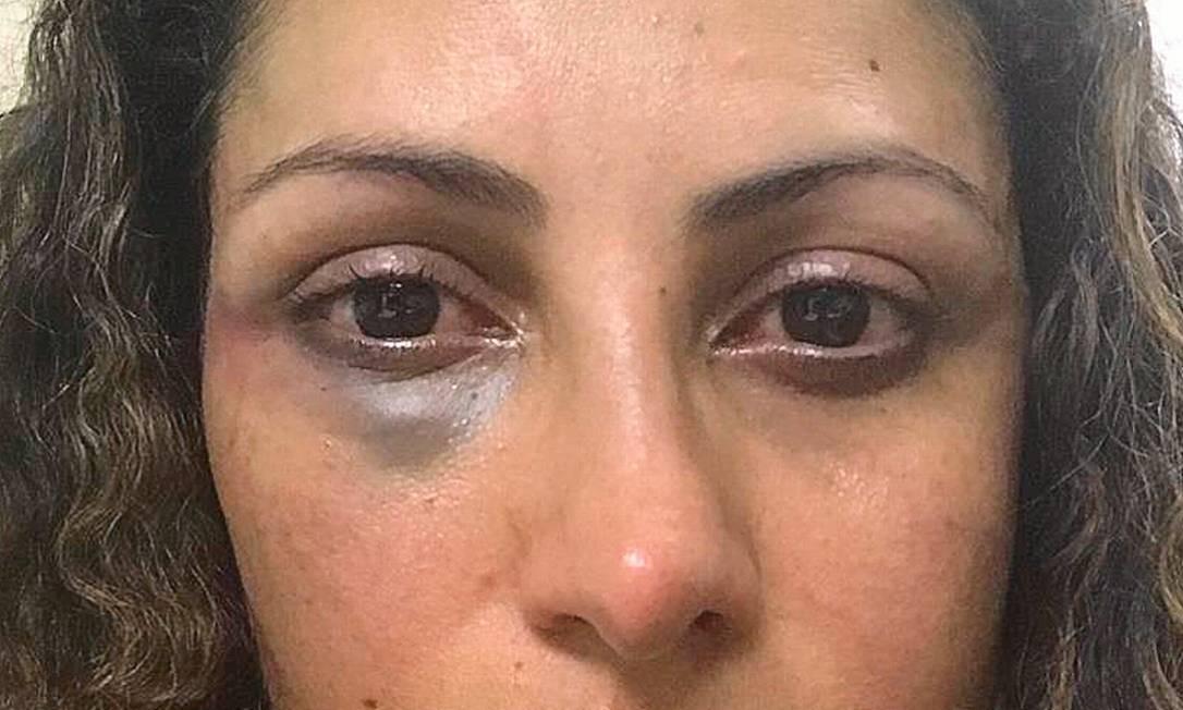 Élida Souza, em foto tirada pela filha no dia da agressão: 'Me chamou de prostituta e deu um soco no meu olho' Foto: Reprodução