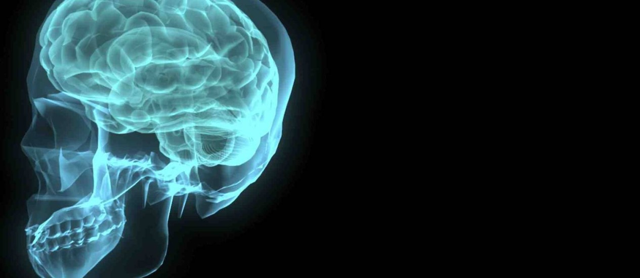 Mapeamento do cérebro em busca de mutações relacionadas ao autismo Foto: Stock Photo