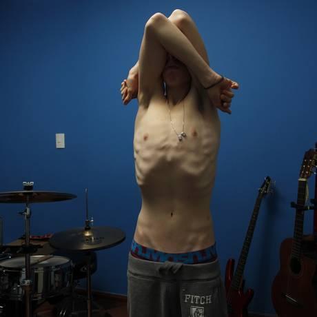 O estudante e músico LMR, de 14 anos, morador de Santo André, SP, perdeu 22 quilos em três meses Foto: Michel Filho / O Globo