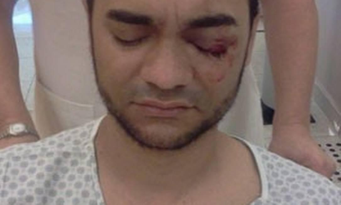 O fotógrafo Sérgio Silva foi atingido por um tiro de uma bala de borracha durante os protestos de junho de 2013