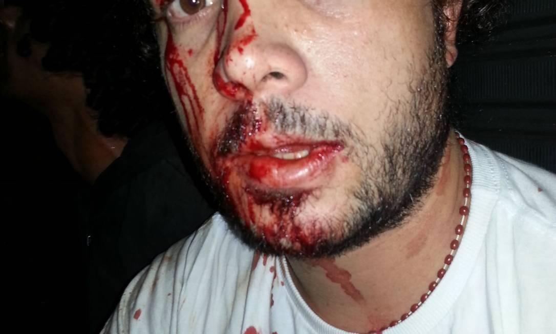 Manifestante afirma que recebeu uma paulada na testa enquanto manifestava com a noiva Foto: Arquivo Pessoal