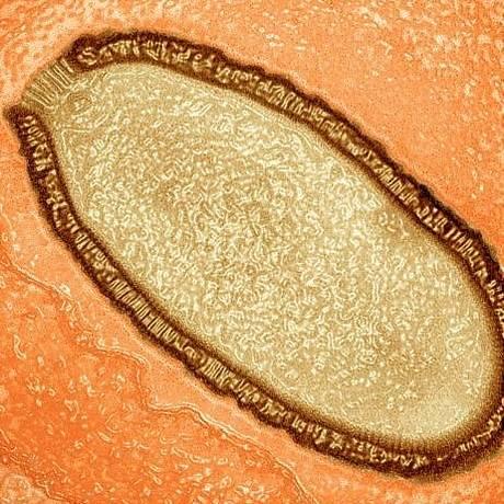 Imagem de microscópio eletrônico mostra vírus em ameba infectada Foto: Divulgação/IGS/CNRS-AMU