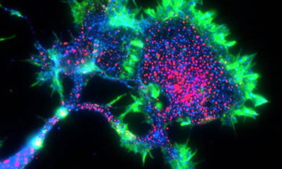 Proteína ligada ao Alzheimer se concentra na superfície das células nervosas em crescimento; nova pesquisa sugere que risco da doença pode começar na gestação Foto: Universidade de Stanford / Carla Shatz