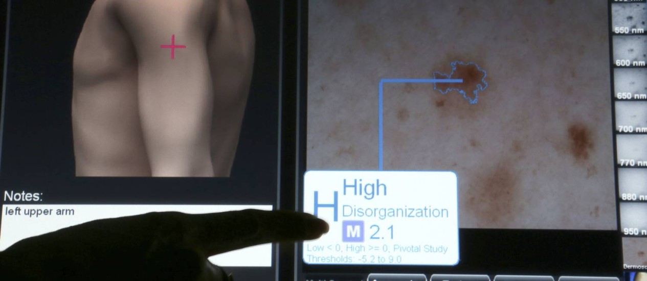 Sistema de computador ajuda a identificar um possível melanoma Foto: SUZANNE DECHILLO / NYT