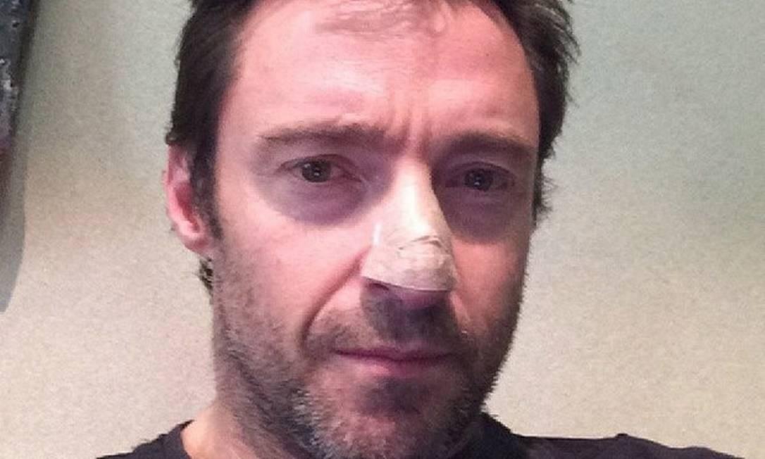 Hugh Jackman mostra curativo no nariz após retirado de câncer de pele Foto: Reprodução / Facebook