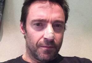 Hugh Jackman mostra curativo no nariz após retirar câncer de pele, em novembro de 2013 Foto: Reprodução / Facebook