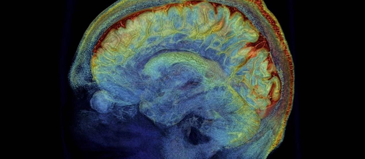 Conforme envelhecemos, novos neurônios substituem os antigos, que retinham as memórias mais remotas de nossa infância Foto: Agência O Globo