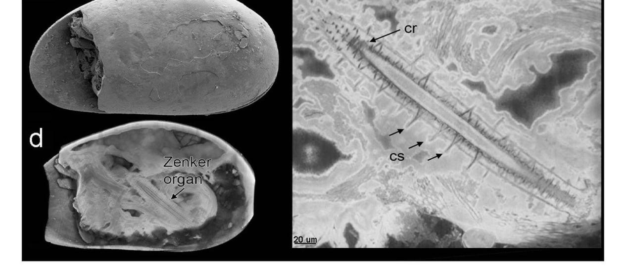 Montagem mostra detalhes do esperma mais antigo do mundo, encontrado em um parque da Austrália Foto: Universidade da Nova Gales do Sul / AFP