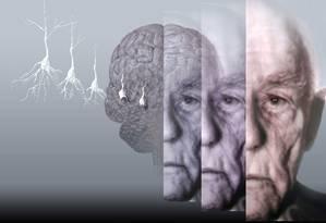 Insucesso na procura de drogas contra Alzheimer do que com a de câncer Foto: Agência O Globo