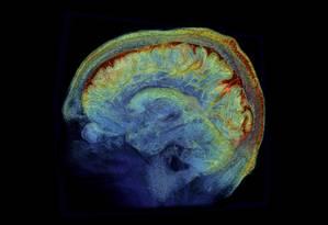 Projeto Cérebro Humano, da Comissão Europeia, seria pouco transparente Foto: Agência O Globo