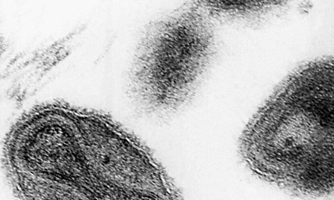 Imagem de microscópio de 1975 mostra vírus da varíola Foto: CDC / AP