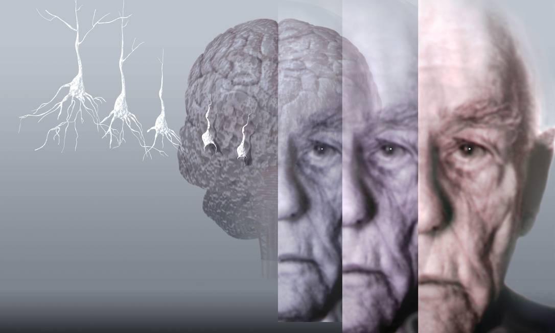 Mal de Alzheimer é caracterizado pela progressiva morte de neurônios, o que leva a problemas congnitivos: pesquisa relaciona uso de remédios benzodiazepínicos ao desenvolvimento da doeça Foto: / Latinstock