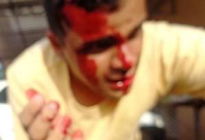 Candidato foi atingido na cabeça por uma pedra enquanto fazia campanha em Macapá Foto: Facebook / Reprodução