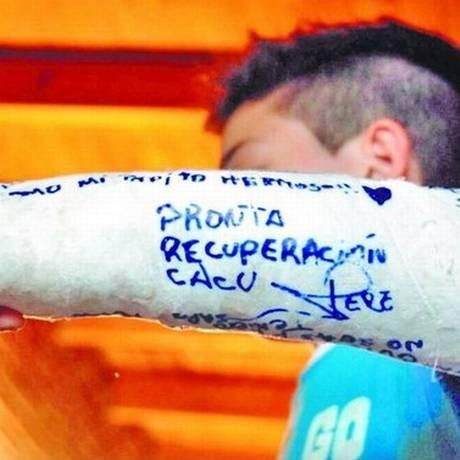 Vítima de bullying e espancamento em escola argentina mostra o braço engessado Foto: Jose Lopez/Clarín