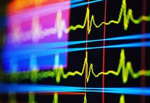 Monitor cardíaco acompanha ritmo do coração Foto: Latinstock