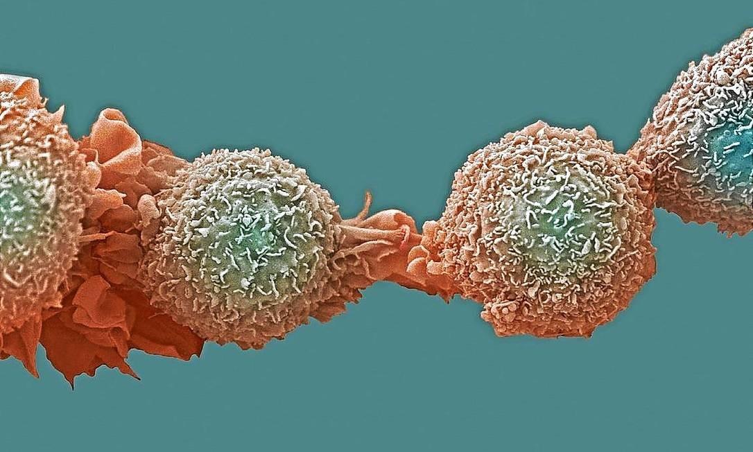 Sorte é fator crucial na maior parte dos cânceres, diz estudo