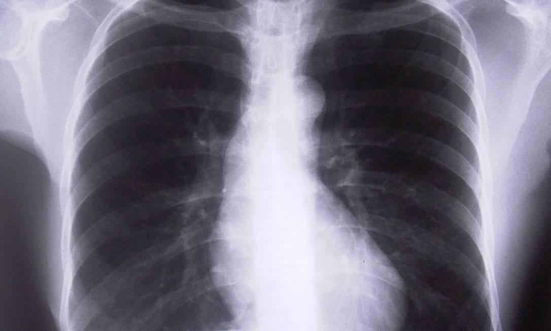 Tuberculose é uma doença contagiosa causada por uma bactéria que afeta principalmente os pulmões Foto: Freeimages