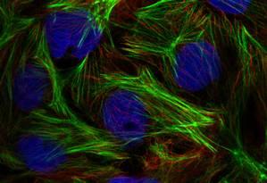 Banco de dados. Imagem da proteína CNN3 no atlas Foto: Human Protein Atlas