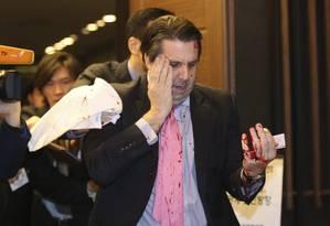 Mark Lippert após o ataque em Seul: embaixador teve ferimento leve Foto: YONHAP / REUTERS