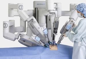 O uso de braços robóticos aumenta a precisão em cirurgias Foto: Divulgação