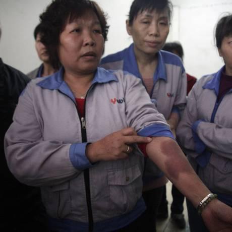 Trabalhadora mostra lesão no braço supostamente causada pela polícia, durante a repressão a uma manifestação em uma fábrica na cidade de Nanlang, no sul da China Foto: Didi Tang / AP