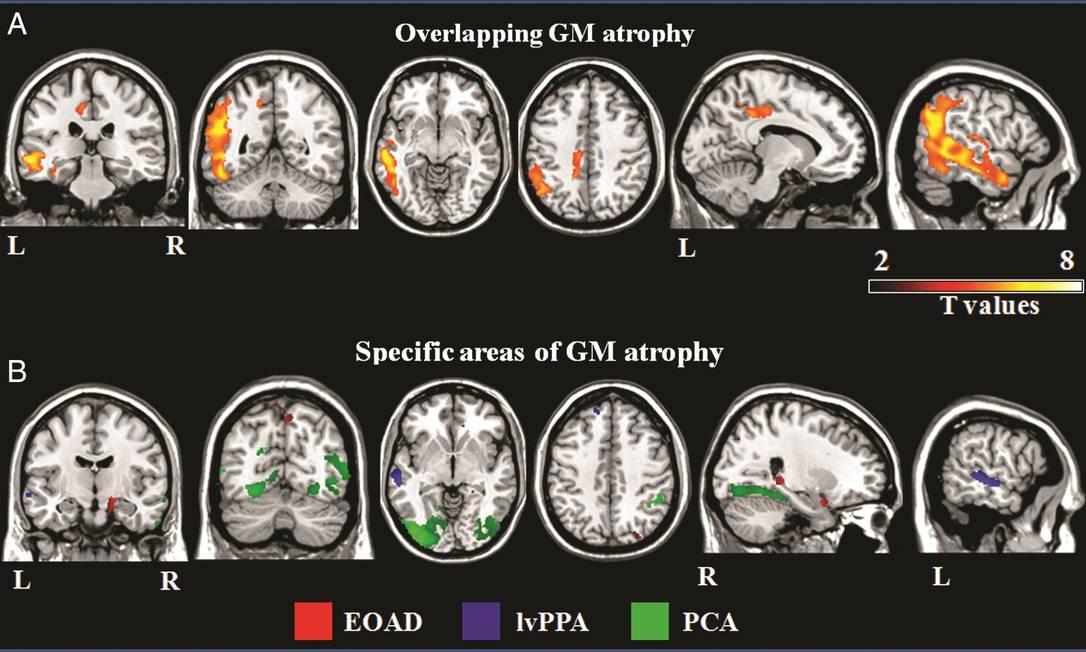 Imagens de exames de ressonância magnética mostram os diferentes padrões de danos no córtex cerebral nas formas atípicas do mal de Alzheimer Foto: Radiological Society of North America