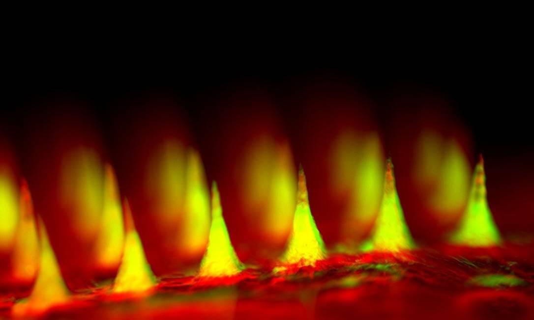 Detalhe das microagulhas do adesivo de insulina que substituiria as injeções para diabéticos Foto: / Divulgação/The lab of Zhen Gu