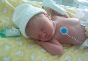 Bebês com má formação: causa pode estar ligada ao uso de antidepressivos pela mãe Foto: FreeImages