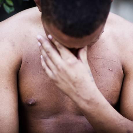 O menor F. foi torturado por internos do Degase em 2013. Acusado de ter delatado outro menor, ele foi marcado no peito e nas costas com gilete Foto: Guito Moreto / Agência O Globo