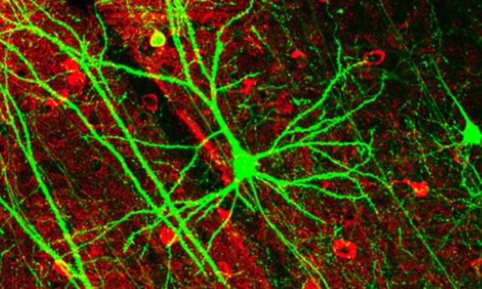 Neurônios podem se regenerar Foto: Agência O Globo