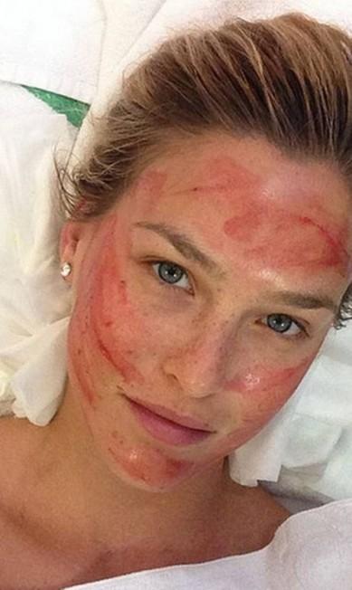Bar também fez tratamento com seu sangue, segindo os passos de Kim Reprodução/ Instagram