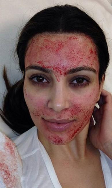 Kim Kardashian também está na lista. A socialite fez tratamento com o próprio sangue Reprodução/ Instagram
