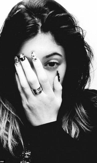 A foto que Kylie Jenner postou após ser atendida no hospital © Kylie Jenner