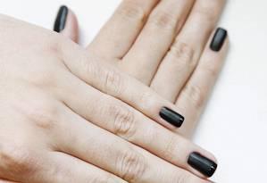 Mãos de fada: Tratamentos dermatológicos produzem o tão desejado rejuvenescimento das mãos Foto: Camilla Maia / Agência O Globo