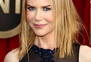 Quando se fala em celebridades que têm botox, o primeiro nome que nos vem à cabeça é o da atriz australiana Nicole Kidman. Símbolo máximo do exagero do tratamento, o casal Jean e Alastair Carruthers, pioneiros no uso da toxina botulínica contra rugas, acham que Nicole realmente é um exemplo negativo: