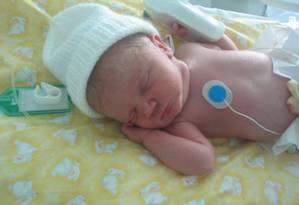Bebês tendem a ser expostos a cuidados neonatais estressantes, que podem afetar o desenvolvimento do cérebro Foto: Arquivo