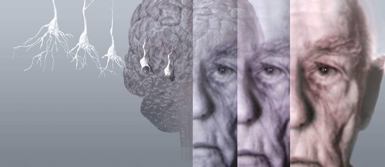 Áreas cerebrais reduzidas podem indicar início do mal de Alzheimer Foto: Latinstock