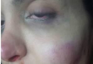 Em vídeo, atriz Viviany Beleboni mostra marcas no braço esquerdo e no rosto Foto: Reprodução da web