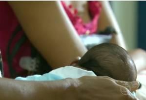 Bebês com microcefalia, em geral, têm o perímero encefálico igual o inferior a 33 centímetros, o que pode levar a problemas neurológicos e motores Foto: Reprodução/TV Globo
