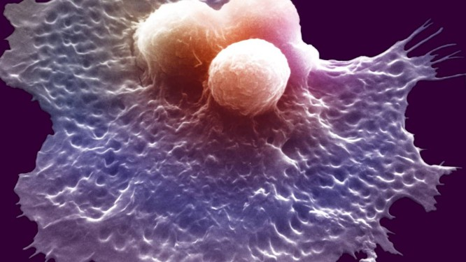 Célula de defesa do organismo ataca três células cancerosas: detecção precoce da doença é chave para o sucesso dos tratamentos Foto: Latinstock