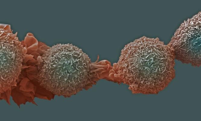 Células de câncer de pulmão: biomarcador também está presente em células cancerosas no cólon, mama, estômago e endométrio Foto: Latinstock