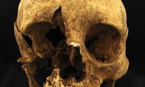 Caveira de um esqueleto de um homem entre 35 e 50 anos que foi enterrado em um cemitério no bairro Casal Bertone, em Roma, na Itália. Análise de isótopos sugere que ele tenha nascido nos Alpes Foto: Divulgação/Kristina Killgrove