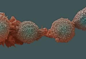 Células de câncer de pulmão. Diagnóstico tardio dificulta tratamento Foto: Arquivo