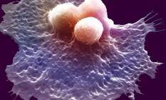 Célula do sistema imunológico ataca três células cancerosas: nanopartícula fornece informações rápidas se quimioterapia ou imunoterapia adotada está atacando o câncer Foto: Latinstock/Science VU/W. J. Johnson/Corbis