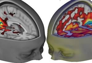 A imagem da direita mostra o cérebro sob efeito do LSD. As cores representam as áreas respondendo à droga. Foto: Divulgação/Imperial College London