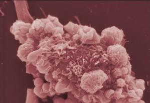 Novo tratamento é capaz de fazer o sistema imunológico destruir as células cancerígenas Foto: EFE
