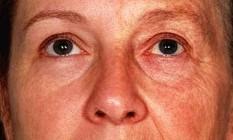 O impacto da idade na aparência facial do ser humano é ilustrado pela imagem Foto: Divulgação/Fan Liu